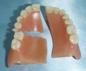 Törött fogsor